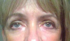 Eyelid surgery (Blepharoplasty) - Photo before - PRIMED Clinic