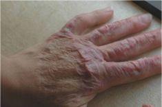Laser frakcyjny/Fraxel (usuwanie przebarwień, zmian potrądzikowych, odmładzanie skóry) - Zdjęcie przed - Lecznica Melitus