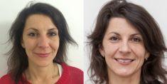 Odstranění pigmentových skvrn - fotka před - MUDr. Katarína Třísková - MEDICOM Clinic