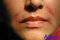 Lip augmentation - cheiloplasty - Photo before - Azim Jahangir Khan M.D.