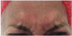 Hyaluronic acid-based wrinkle fillers - Photo before - Aether Institute Prague
