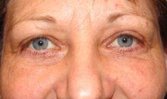 Augenlidstraffung - Vorher Foto - Priv.-Doz. Dr. Georg M. Huemer MSc, MBA