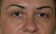 Eyelid surgery (Blepharoplasty) - Photo before - Dr. Horia Remus Siclovan