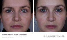 Usuwanie przebarwień i zmian barwnikowych - Zdjęcie przed - Dr Ilona Wnuk-Bieńkowska