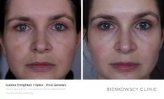 Age Spots Treatment - Photo before - Dr Ilona Wnuk-Bieńkowska