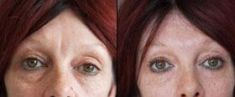 Hyaluronic acid-based wrinkle fillers - Photo before - Tracey Bell Clinic