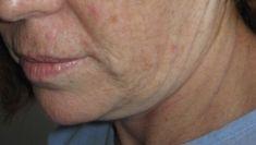 Lifting facial - Foto Antes de - Dra. Teresa Chomali Kokaly (Especialista Acreditado) MD, FACS