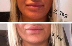 Lippenvergrößerung - Vorher Foto - Dr.med. Stefan Gärner