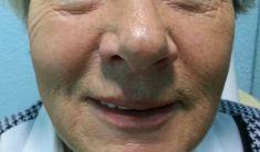 Beauty Derm Instytute - Wypełnianie Bruzd Nosowo-Wargowych kwasem hialuronowym