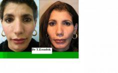 Dr Tayeb Essadok - Cliché avant - Dr Tayeb Essadok