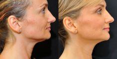 Nicht-invasives Lifting - Vorher Foto - YES VISAGE Aesthetic medicine and plastic surgery clinic