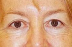 Eyelid surgery (Blepharoplasty) - Photo before - MUDr. Michal Puls CSc. - MEDICOM Clinic