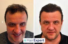 HairExpert - transplantace vlasů s doživotní zárukou - S HairExpert jsem byl v Istanbulu před 8 měsíci a byl jsem maximálně spokojený. Perfektní servis, skvělé ubytování a péče v nemocnici. Teď, po 8 měsících, je již výsledek transplantace vidět a hlavu mám opět plnou vlasů.  Jiří H. - 46 let,   4.800 štěpů