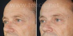 Poliklinika za estetsku kirurgiju Dr. Tončić - Fotografija prije - Poliklinika za estetsku kirurgiju Dr. Tončić