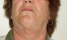 Mole removal - Photo before - Dr. Horia Remus Siclovan