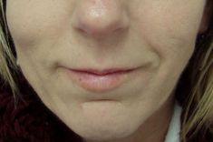 Lipofilling, Lipografting, Lipotransfer (přenos a aplikace vlastního tuku) - fotka před - MUDr. Evžen Trupar Ph.D.