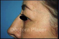 Cirugía de párpados (Blefaroplastia) - Foto Antes de - Dra. Ainhoa Placer Lainez