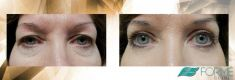Eyelid surgery (Blepharoplasty) - Photo before - FORMÉ Clinic