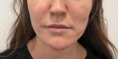 Niťový lifting - Niťový lifting dolní třetiny obličeje