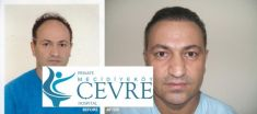 Private Cevre Hospital - Photo before - Private Cevre Hospital