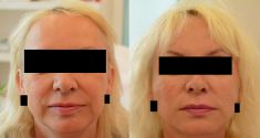 IP Beauty - 5 liftingových PDO nití na každou stranu tváře