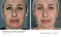 Hautverjüngung mittels Lichttechnologien (Photorejuvenation) - Vorher Foto - Bieńkowscy Clinic®