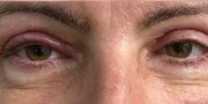 Operácia očných viečok (Blepharoplastika) - Fotka pred - Scarlett Clinic