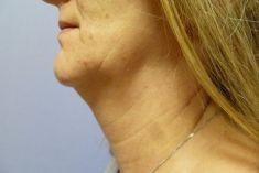 Liposukce brady - Před a 1 rok po operaci.