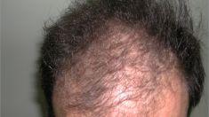 Trapianto capelli - Foto del prima - Dott. Salvatore Marrocco