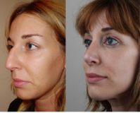 Cirugía de la nariz (Rinoplastia) - Paciente operada de rinoplastia con técnica abierta , corrección de dorso con giba prominente, modificación del ángulo nasolabial, modificación del largo y proyección de punta.