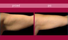 Body-jet liposukcja (WAL) - Zdjęcie przed - HORIZON MEDICAL CENTER Klinika Medycyny Regeneracyjnej