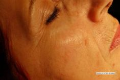 Léčba biostimulačním laserem - fotka před