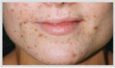 Laserové zákroky estetické dermatologie - fotka před