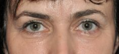 Eyelid surgery (Blepharoplasty) - Photo before - Dr n. med. Lubomir Lembas