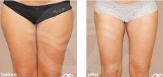 Liposucción - Foto Antes de - Ocean Clinic Marbella