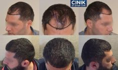 "Dr. Emrah Cinik - FUE - Method:  For those who want to have a hair transplant, the burning question is which hair transplantation procedure is the best technique. The FUE technique, which refers to ""Follicular Unit Extraction"" or ""Individual Follicle Extraction"", is considered the most advanced hair transplant technique available.  The FUE hair transplant technique is surgical variant of the follicular micro transplant technique and it is implemented by extracting the follicles of the donor site on an individual basis without the need of stitches and without leaving scars.  These follicular units in groups of 1, 2, 3 or 4 hair groups are extracted in its natural groupings and prepared carefully. As a matter of principle, there is no better technique than another since the form of extraction the follicles from the donor zone by keeping its natural form."