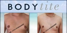 Gynecomastia (Male Breast Reduction) - Photo before - Dr. JORGE ECHEAGARAY HERRERA