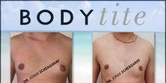 Gynecomastia (Male Breast Reduction) - Photo before - Dr. JORGE ECHEAGARAY HERRERA