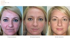 Laser acne treatment - Photo before - Dr Ilona Wnuk-Bieńkowska