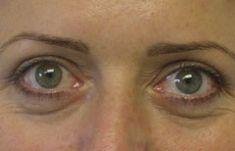 Operácia očných viečok (Blepharoplastika) - Fotka pred - Esthetic, s.r.o.