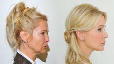 Niťový lifting - fotka před - Klinika YES VISAGE - klinika estetické medicíny a plastické chirurgie