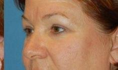 Augenbrauenanhebung - Vorher Foto - MUDr. Martin Molitor PhD.