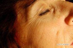 Avienclinic - fotka před - Avienclinic