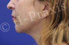 Hyaluronsäure – Faltenfüller - Behandlung des