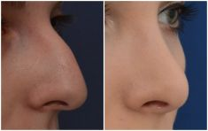 Nasenkorrektur - Rhinoplastik - Vorher Foto
