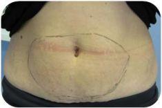 Liposukcia laserová - SmartLipo - Fotka pred - MEDICAL MKP