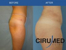 Aumento y Modelado de Glúteos - Foto Antes de - Cirumed Clinic