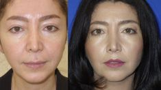Dr Osuch Clinic - Photo before - Dr Osuch Clinic