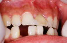 Dental implants - Photo before - Dr. Alex Farnoosh D.M.D., M.S.D., Ph.D.