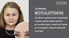 Kozmetická klinika OLALOOK - Využíva k odstráneniu mimických vrások, najmä medzi obočím pri koreňa nosa, v okolí očí najmä pri vonkajších očných kútikoch a na čele. ◽ Aplikácia zaberie cca 10 minút. ◽ Výsledok sa prejaví za cca 5 dní. ◽ Účinky botulotoxínu cca 6 mesiacov.  Termín je možné objednať na http://fresha.com/olalook-haime5be/booking  *Výsledky ošetrenia sú individuálne a môžu sa líšiť od osoby k osobe